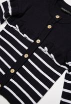 Superbalist - Striped cardigan - navy and white