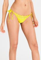Sissy Boy - Embroidered Side Tie Bottom Yellow